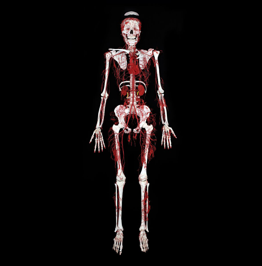 Arterial Bone Body. Copyright: Gunther von Hagens' BODY WORLDS, Institute for Plastination, Heidelberg, Germany, www.bodyworlds.com